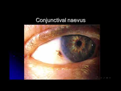 Strabismus, Conj, Eye injuries, Orbit and Lacrimal diseases