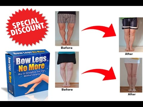 Bow Legs No More Review - How to Fix Bow Legs without Surgery