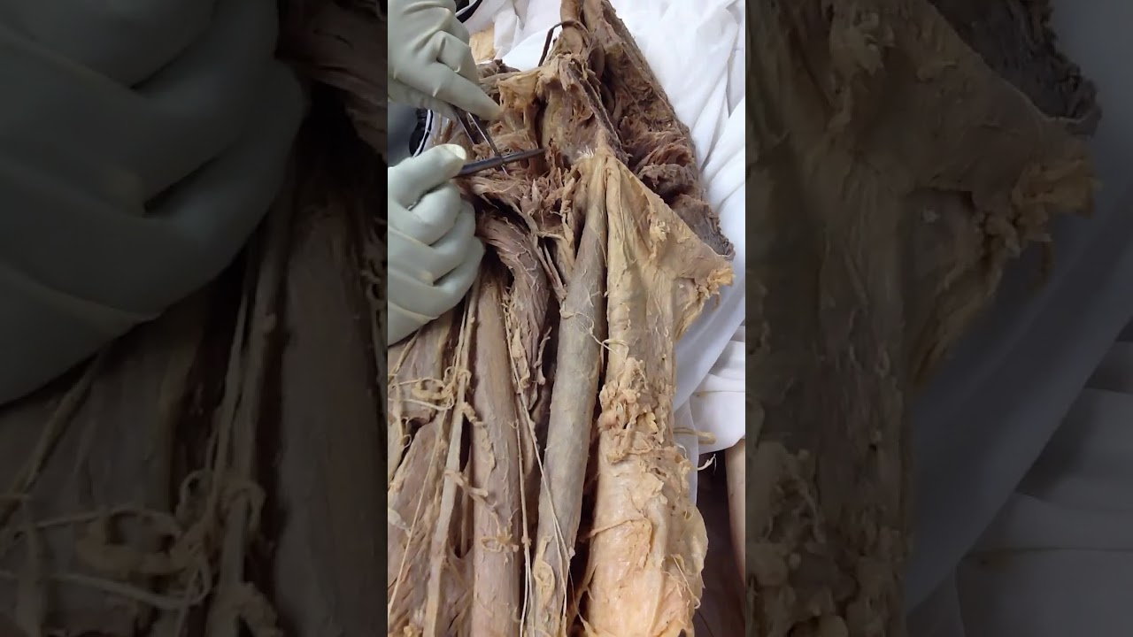 Medial Compartment Of The Thigh Dissection Of Cadaver Human Anatomy
