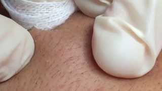 WHITEHEADS Removal