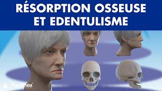 Résorption osseuse et edentulisme ©