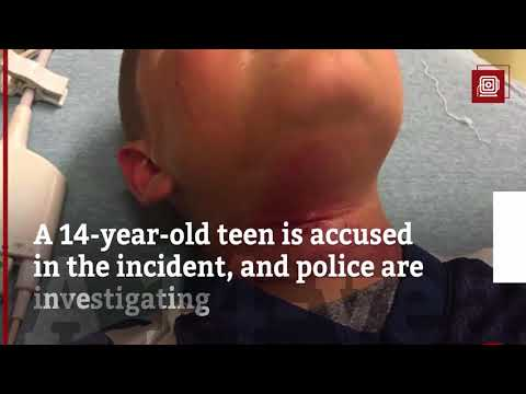 8 year old biracial boy's family claims a group of white teens attempted to hang him