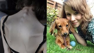 """My dog saved me from anorexia"""