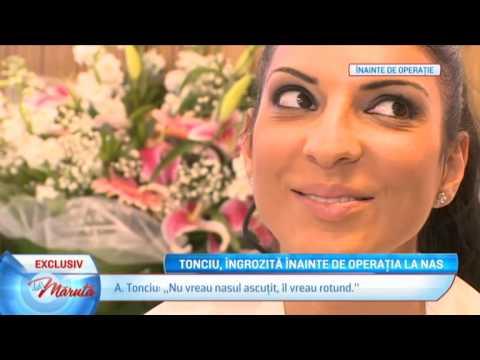 Andrea Tonciu operatie nas Esteworld