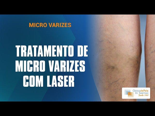 Tratamento de Microvarizes