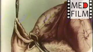 Резекция желудка. Академик В.В.Кованов © gastrectomy. V.Kovanov