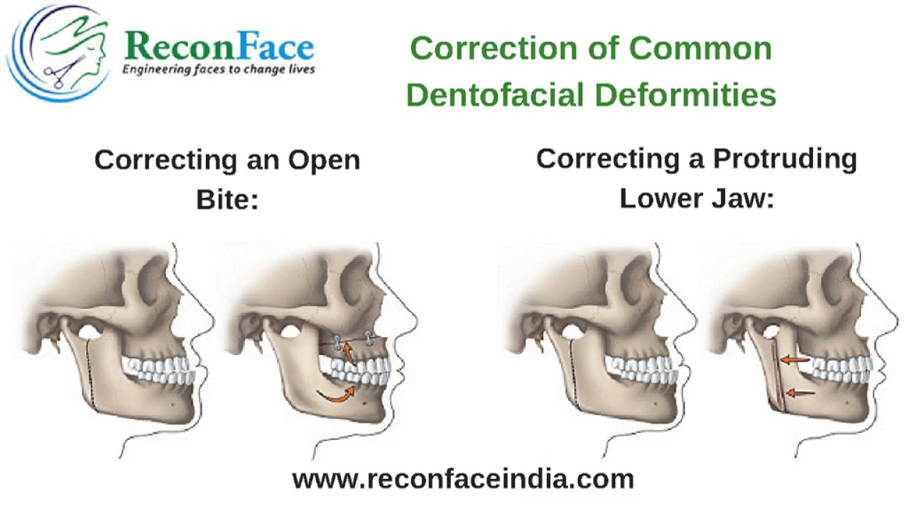 Corrective Jaw Surgery in Hyderabad | Jaw Reshaping Surgery in India ...