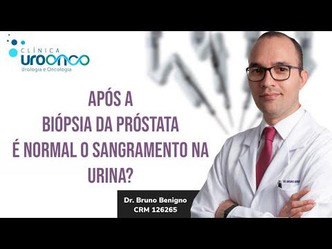 ¿Cuánto tiempo lleva una biopsia de próstata?