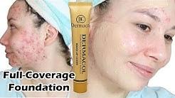 hqdefault - Severe Acne Coverup Foundation