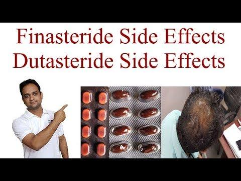 Finasteride Side Effects | Dutasteride Side Effects - YouTube