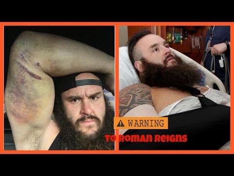 Braun Strowman shows off nasty elbow injury on instagram, Sends message to Roman Reigns