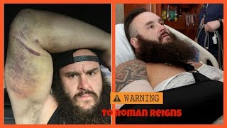 Braun Strowman shows off nasty elbow injury on instagram, Sends message to Roman Reigns