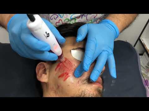 İz Tedavisi - Dermatolog Dr. Fatma Yıldız
