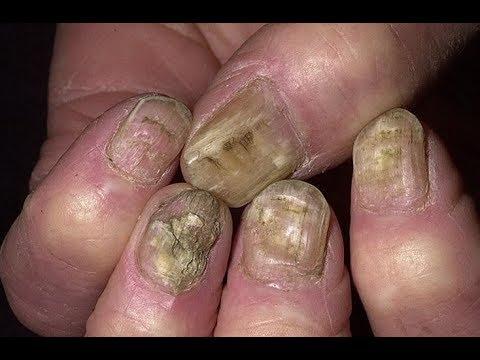 Лак для ногтей батрафен инструкция по применению