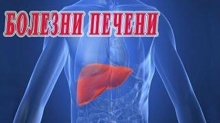 видео Симптомы и лечение алкогольной болезни печени