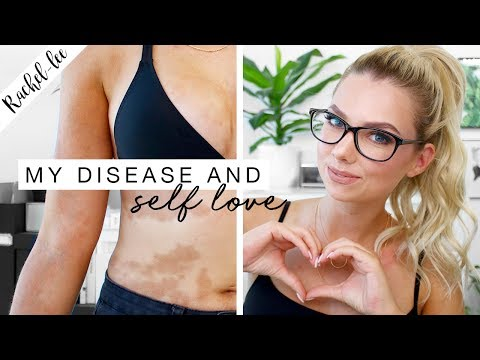 My Autoimmune Disease & How I Love My Skin | Motivation Monday