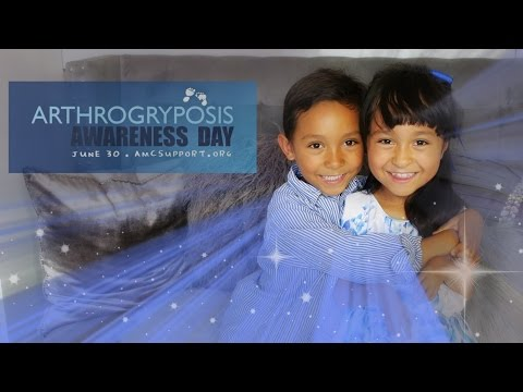 💙Arthrogryposis Awareness Day, Our Journey !!! June 30 2016 👧🏻 💙