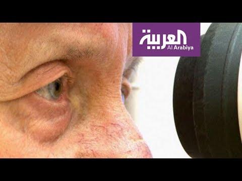 صباح العربية | تقنية حديثة لعلاج الجلوكوما  - نشر قبل 2 ساعة