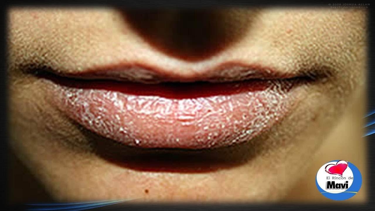 labios muy agrietados