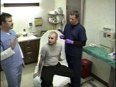 Emergency Medical Body Piercing Removal - Barbells & Labrets