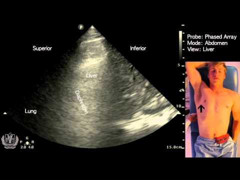 Abdomen - Liver
