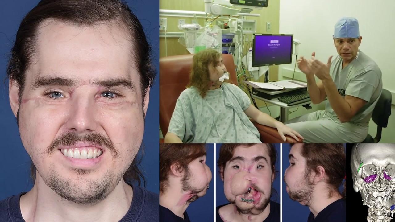 Yaoi movies facial transplant surgery hardcore video sofia