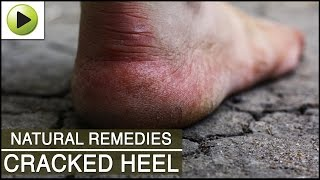Skin Care - Cracked Heel - Natural Ayurvedic Home Remedies