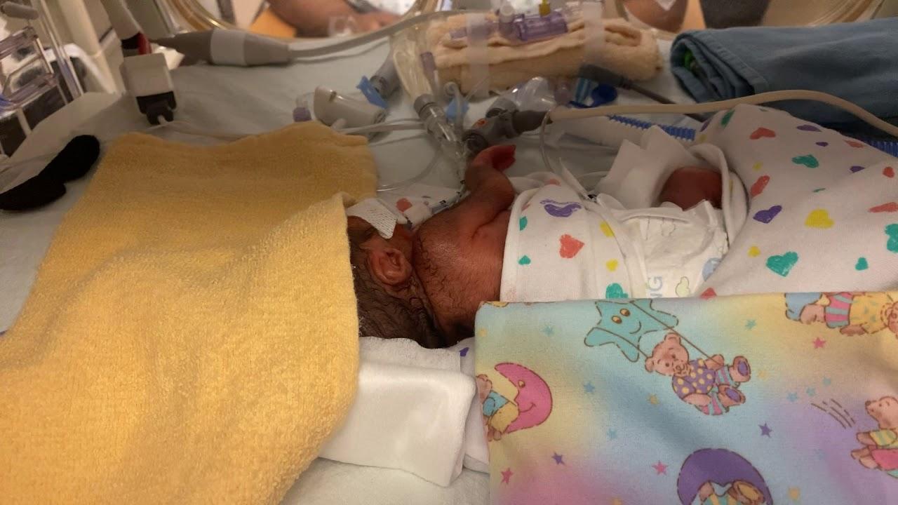 Premature 26 week old baby - YouTube