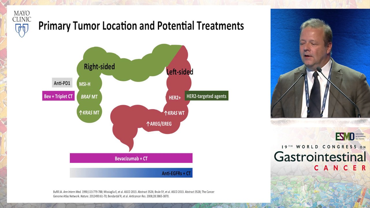 Updates On Treatment Algorithms In Metastatic Crc In 2017 Left Vs Right Colon Cancer Youtube