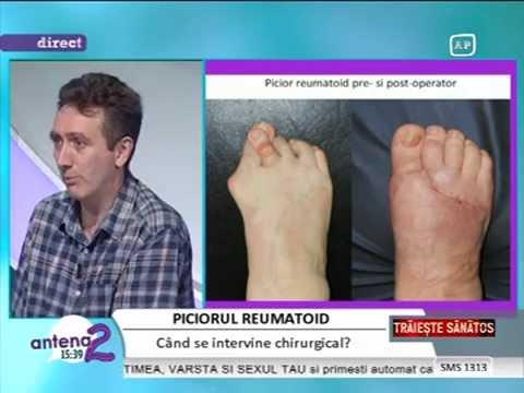 tratamentul sinovitei articulației piciorului