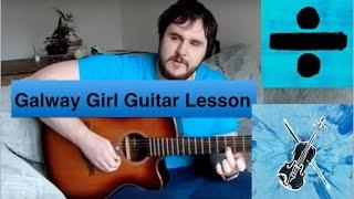 Ed Sheeran galway girl full guitar lesson! intro, verse, pre-chorus, chorus, bridge