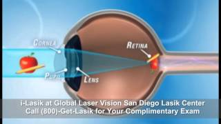 Custom Lasik: What is it and Why it is better than Standard Lasik: (800) 438-5274