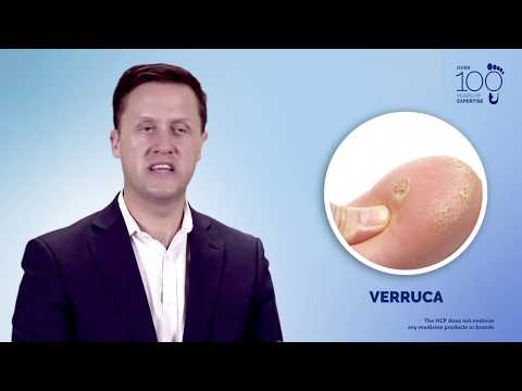 Understand and Manage: Wart & Verruca
