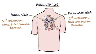 Heart Murmurs and Heart Sounds: Visual Explanation for Students