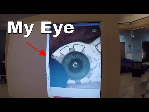Vaporizing My Eye with a Femto-Laser—I Filmed my Lasik Eye Surgery