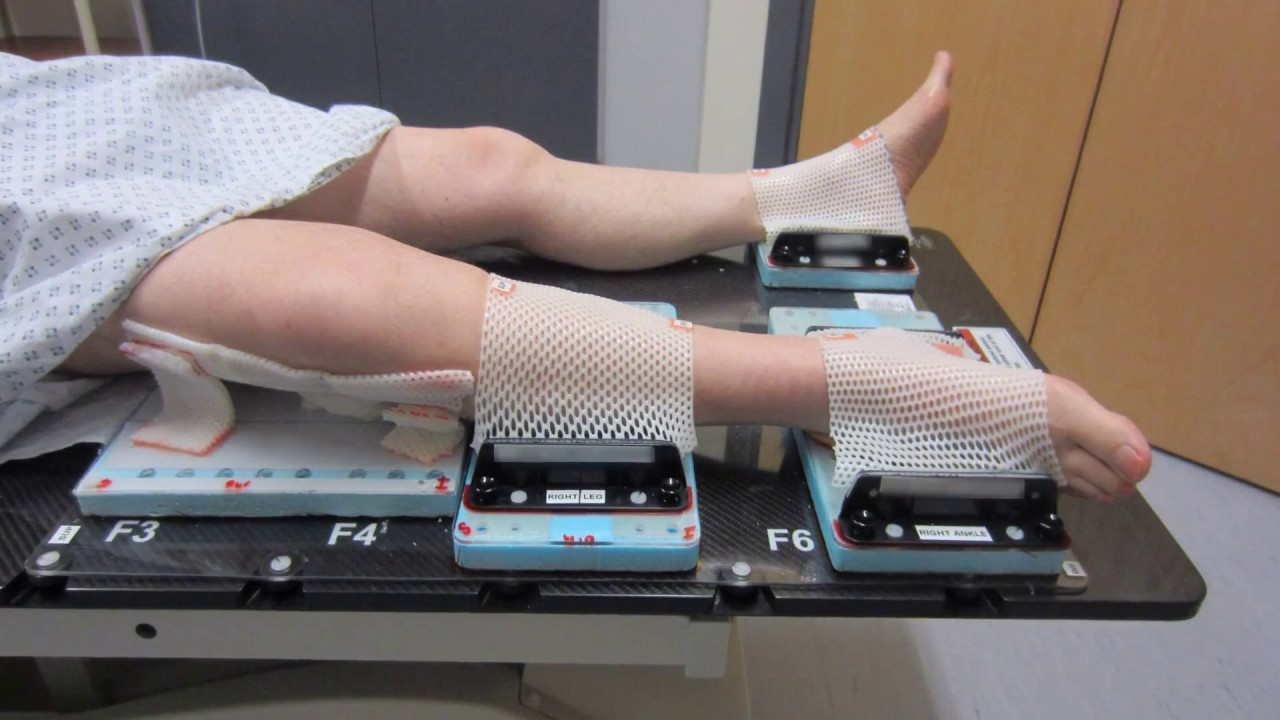 Another Leg Support, Sarcoma Treatment