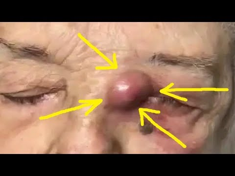 Satisfying Video Acne Blackheads Removal Face Skin Care Beauty (Part 224)