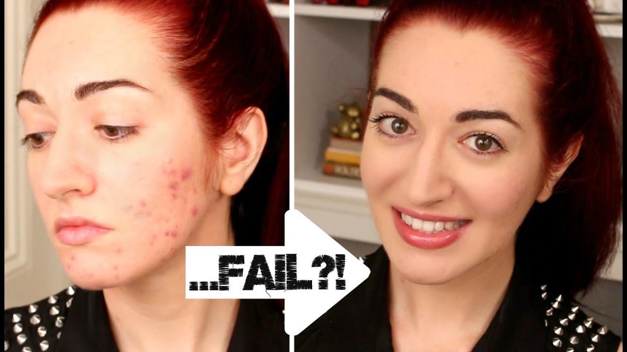 How to cover up pimples with makeup