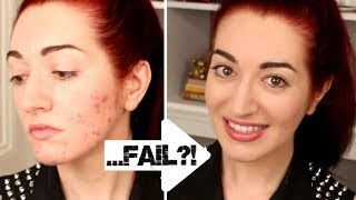 HOW TO: Quickly Cover Acne & Scarring! 5 Minute Makeup Challenge FAIL?! Thumbnail
