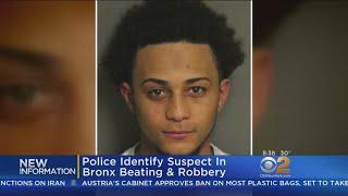Brutal Bronx Beating Suspect Identified