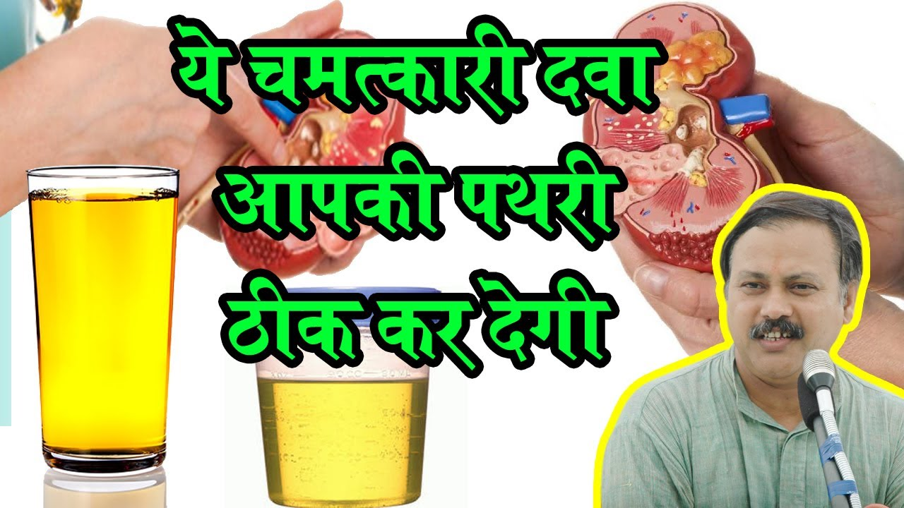 Rajiv Dixit - पथरी का ऐसा घरेलू इलाज आपने पहले नहीं देखा होगा- Stone  Treatment by Rajiv Dixit