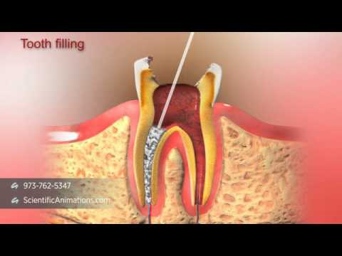 Root Canal Treatment - Austin Root Canal Specialists 2016-12-05 15:39