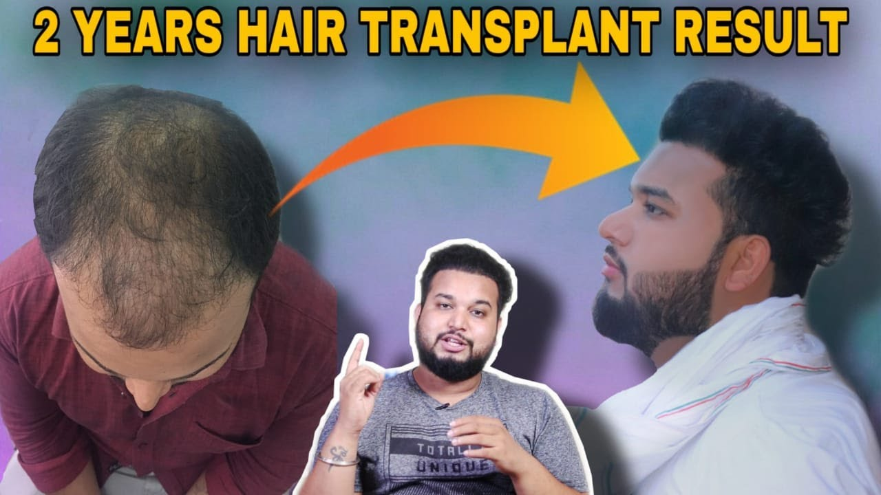 2 Years Of Hair Transplant Result In India 2020 || Sourav Mridha