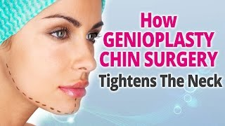 How Genioplasty Chin Surgery Tightens The Neck Thumbnail