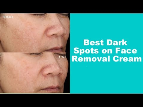 Best Dark Spots on Face Removal Cream (Dark Spot Corrector Before and After)