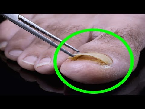 Toenail Fungus Treatment – Foot Fungus Home Remedy