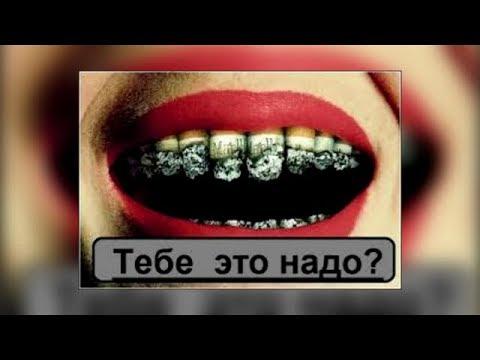 Курение РАЗРУШАЕТ ЗУБЫ / Фролов Ю.А.