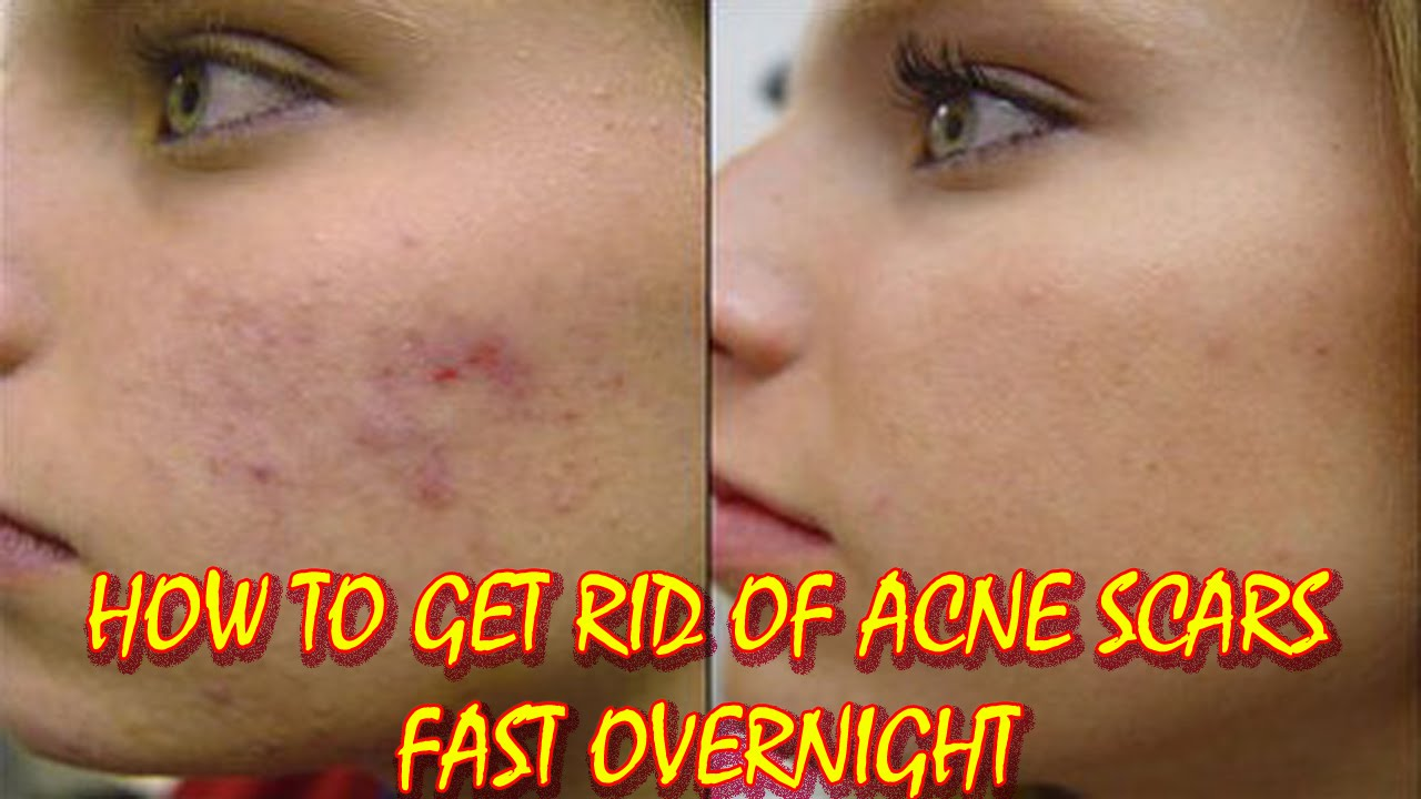 How to Get Rid of Acne Scars Fast Overnight | An easy way ...