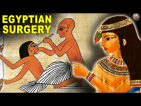 What Surgery Was Like In Ancient Egypt
