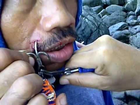 Fish hook emergency doovi for Fishing hook accidents